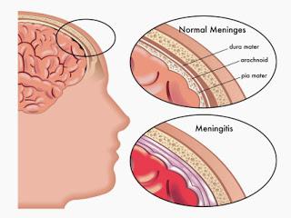 apa-itu-meningitis